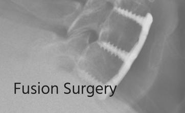 Fusion Surgery